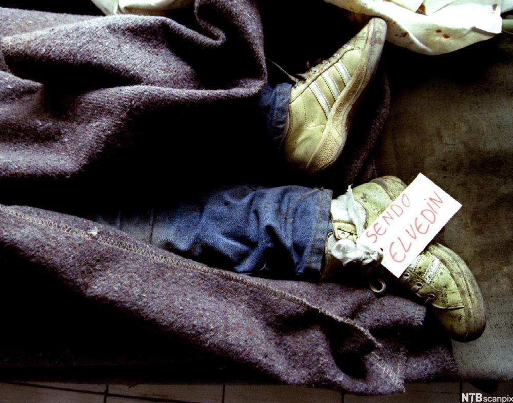 Bilde av føttene til en liten gutt som har dødd under et bombeangrep. Resten av kroppen er dekka av et teppe.