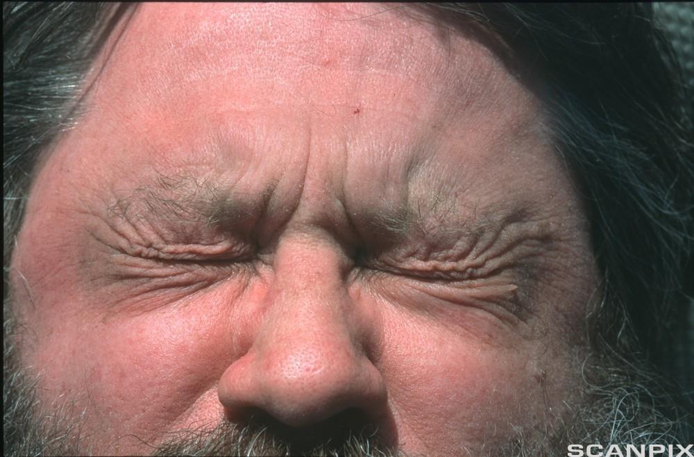 En syk mann kniper øynene sammen. Foto.