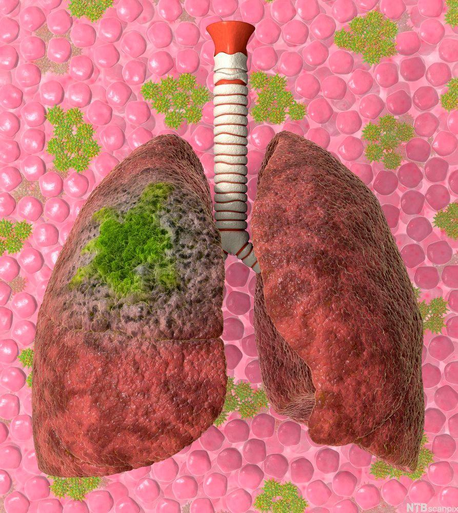 Illustrasjon av syke lunger.