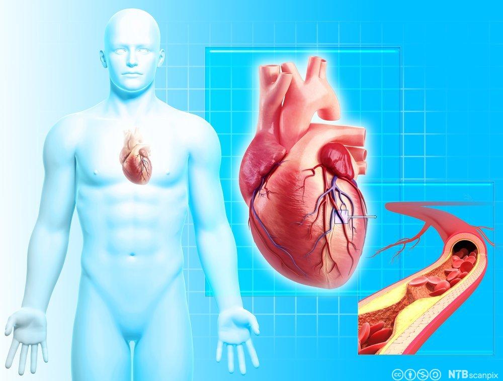 hva er hjerte og karsykdommer