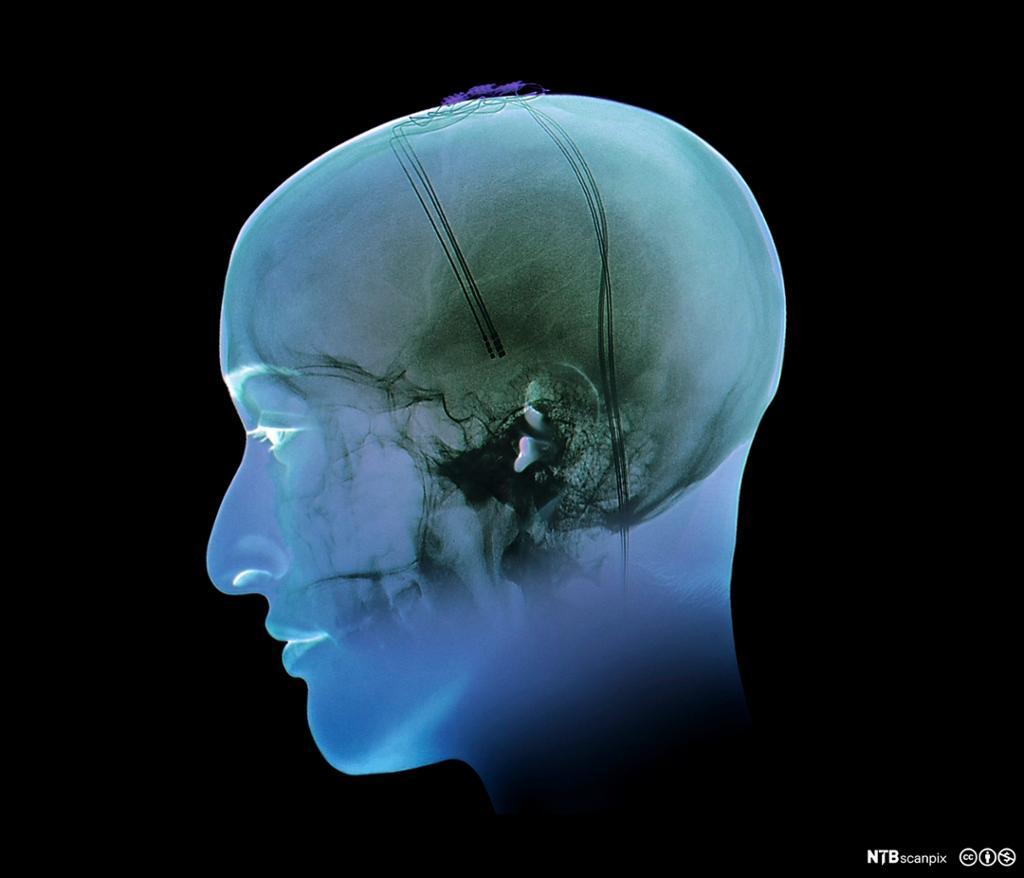 Røntgen av hjerne med Parkinson. foto.