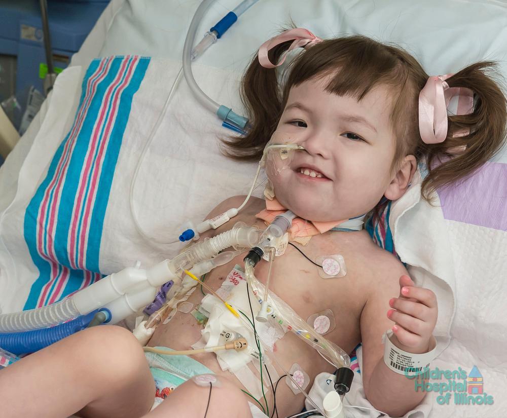 Toårige Hanna smiler i sin sykeseng med mange ledninger koblet til seg.
