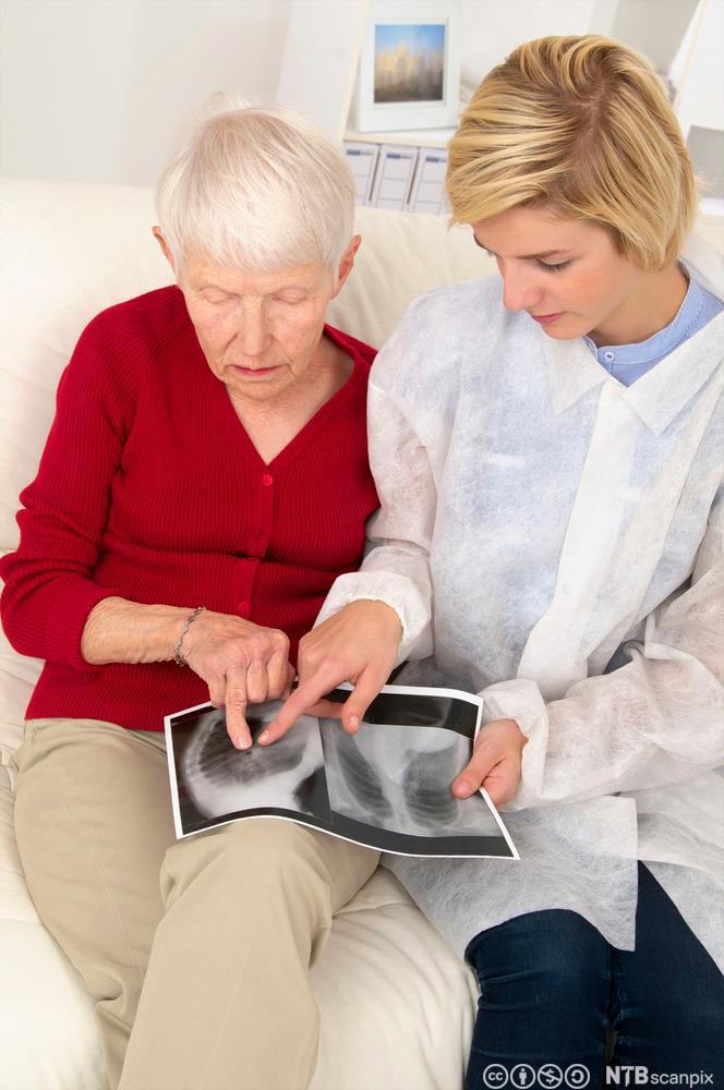 Lege og pasient ser på røntgenbilder