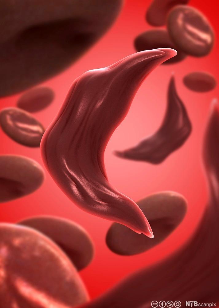 Normale og sigdformede blodceller. Illustrasjon.