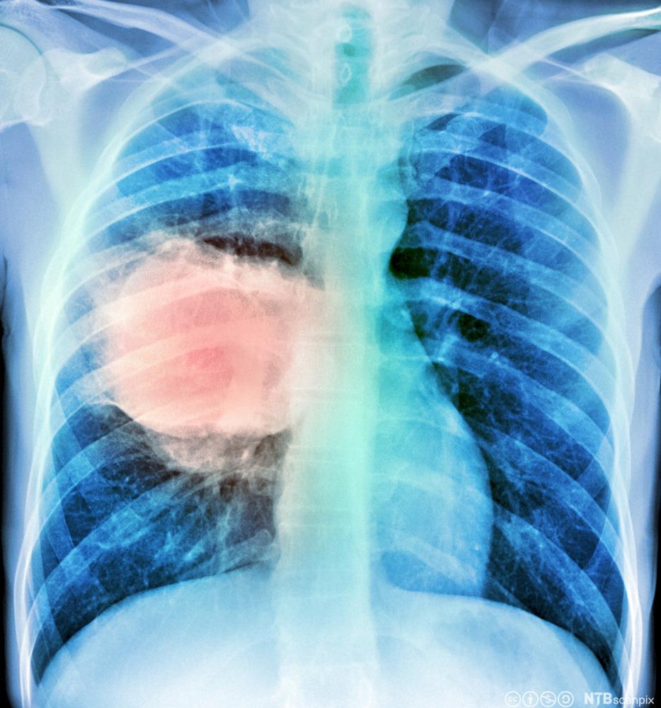 hva er lungekreft