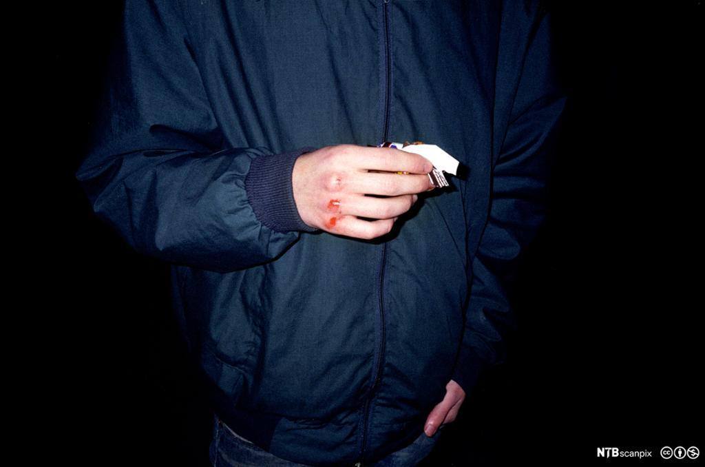 En person i møkrkeblå jakke med en blodig knoke. foto.
