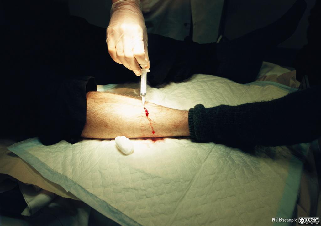 Enkelt sårstelll av et sår på leggen. Foto.