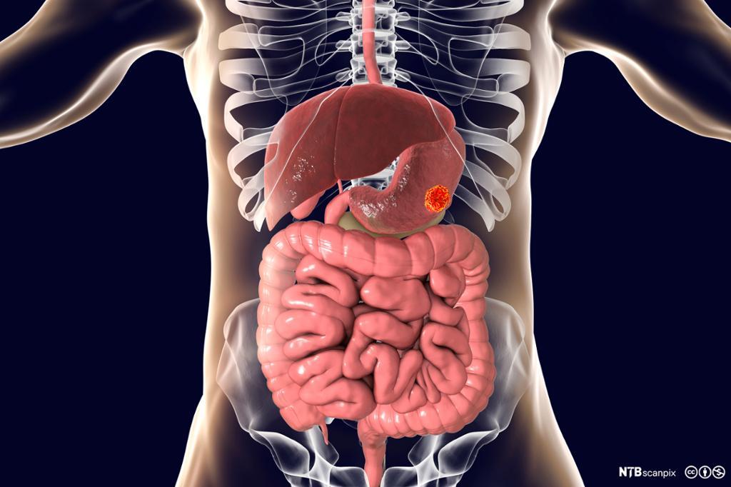 Modell av fordøyelseskanalen med kreftsvulst i magen. Illustrasjon.