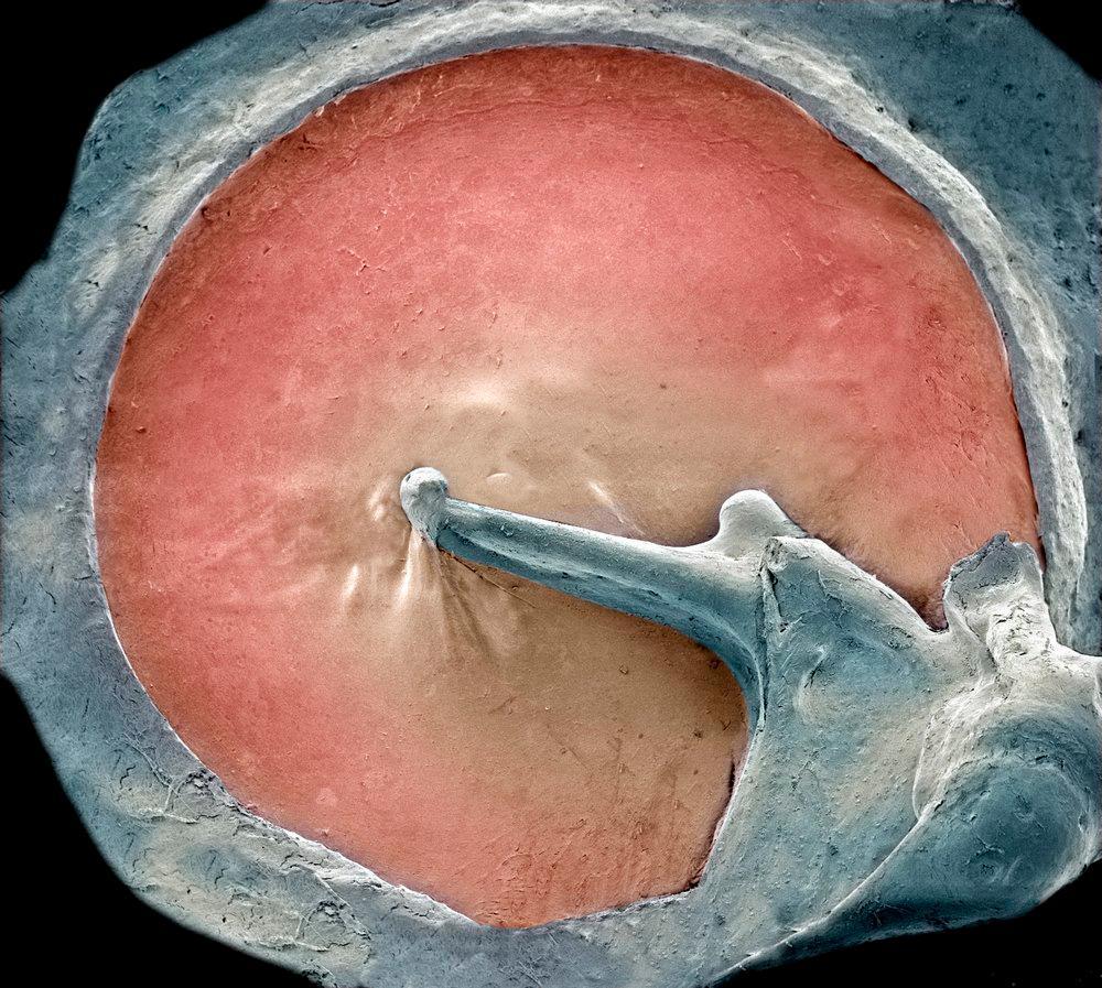 Trommehinnen forbundet med de små ørebeinene i mellomøret