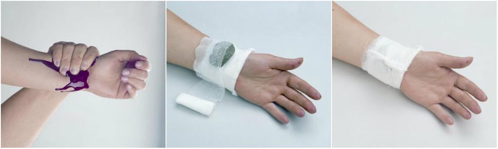 Trykkbandasje på blødende sår. foto.