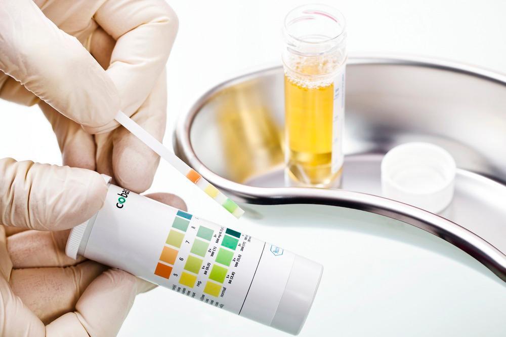 Teststrimmel som er benyttet i urin