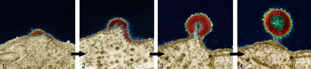 Et HIV-virus dukker opp og frigjøres fra en T-celle. Mikroskopbilde.