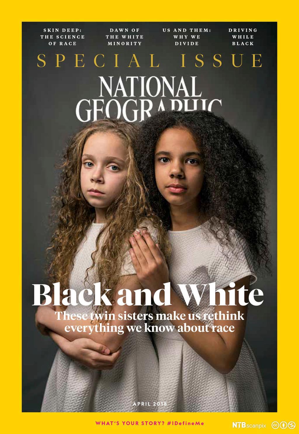 Tvillinger med to ulike farger på coveret til National Geographic. Cover.