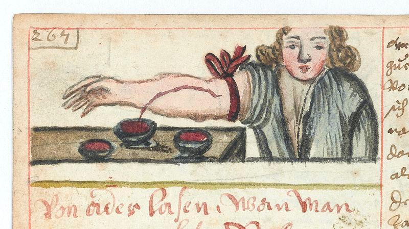 Man som lar seg årelate. Blod renner fra armen og ned i en bolle. To andre boller er allerede fylt med blod. Illustrasjon.